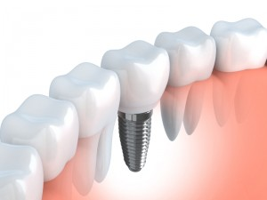 An Enterprise dental implant from Tyler B.Schaffeld DDS looks and feels like a natural tooth. Learn about this dental wonder and how to care for it.