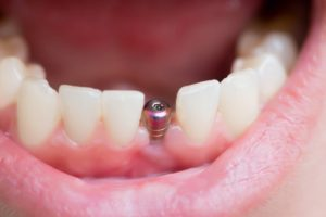 mouth open showing dental implant