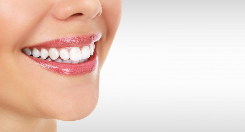 woman smiling with dental crowns or dental fillings